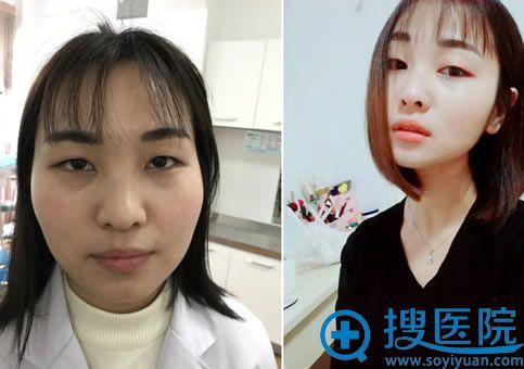 在潍坊华美做双眼皮手术前
