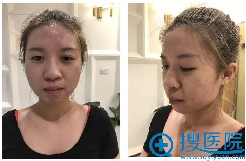 上海薇琳医美双眼皮隆鼻术前