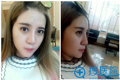 上海薇琳医美双眼皮隆鼻术后