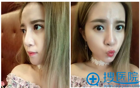 上海薇琳医美崔健双眼皮隆鼻术后半个月