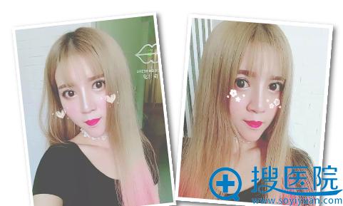上海薇琳医美双眼皮隆鼻术后自拍