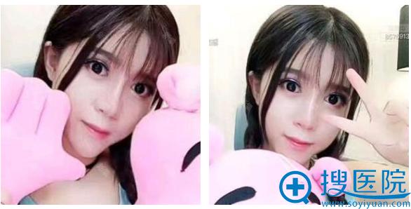 上海薇琳医美崔健双眼皮隆鼻案例术后一个月