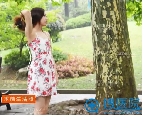 上海网红整容医院上海薇琳医美隆胸术前