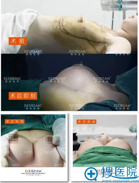 上海薇琳医美赵弘宇假体隆胸前后对比图