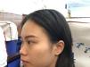 上海九院陈付国做鼻子好吗?看我花7万元做的鼻综合隆鼻案例