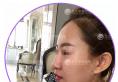 看了九江瑞丽的隆鼻案例后找九江华美整形医院黄小善做了鼻综合