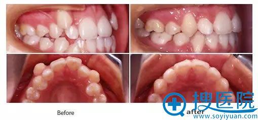 北京八大处口腔科牙齿矫正案例