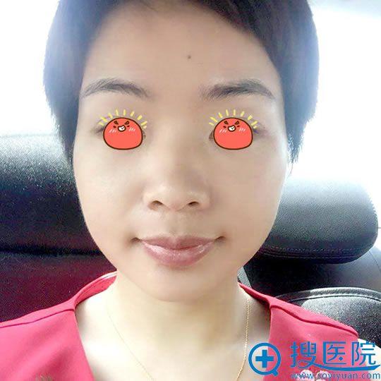 在北京佳妍做皮秒祛斑15天效果