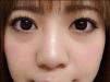 因为脸大拍照不好看所以去上海九院找袁捷主任做了面部吸脂瘦脸
