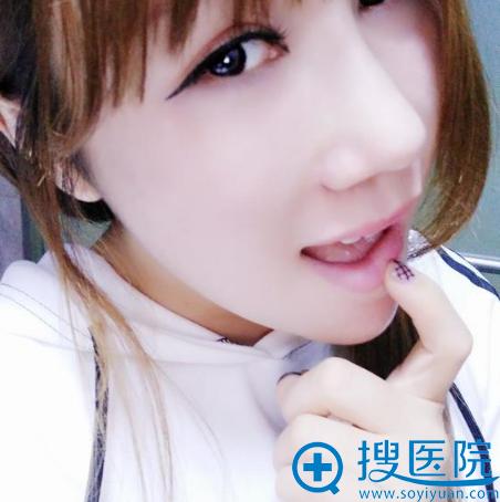 上海华美华美谢卫国隆鼻脂肪填充两个月效果
