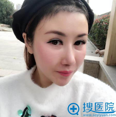 上海华美黄兴勇发际线种植术后三个月图片