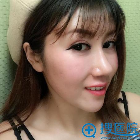 上海华美黄兴勇发际线种植案例图