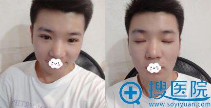 杭州维多利亚马腾切开双眼皮案例恢复照片