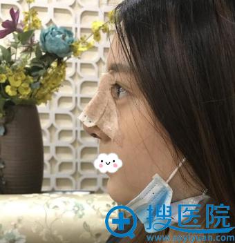 杭州艾菲假体隆鼻效果怎么样?赵德星鼻综合案例