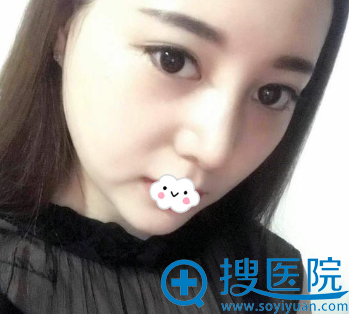 杭州艾菲假体隆鼻术后效果图