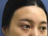 怕玻尿酸时间短取肋骨疼让杭州艾菲(原恒颜) 赵德星做假体隆鼻