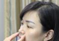 我在闺蜜的鼓励下去福州海峡整形医院找薛克墘做了鼻综合隆鼻