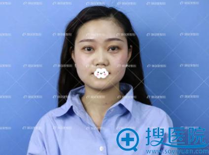 南京施尔美面部线雕提升真人案例