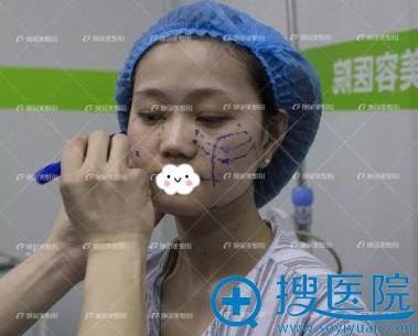 到南京施尔美做线雕提升面部可以年轻吗?