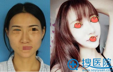 北京华韩整形何照华下颌角案例对比图