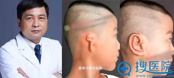 北京八大处章庆国及耳再造案例