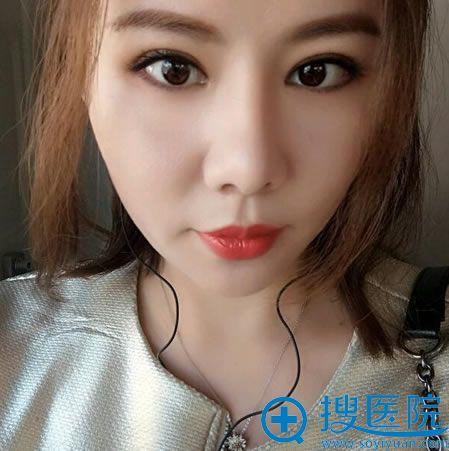 北京张海明割双眼皮和隆鼻案例3月效果