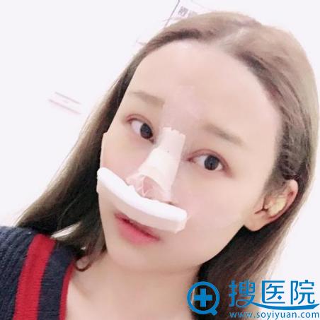 上海美莱整形医院卢建隆鼻案例术前