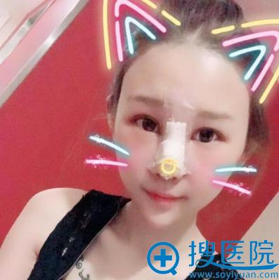 找上海美莱卢建做完隆鼻术后两天