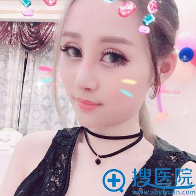 上海美莱整形医院卢建隆鼻案例术后一个月效果图
