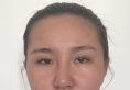 王召东刚给我做完眼部失败修复,我又去青岛博士做了鼻部修复