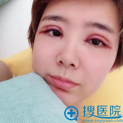 上海美莱原上海九院曾翾双眼皮案例术后即可效果