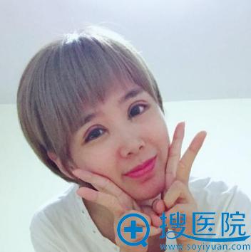 去上海美莱做完双眼皮五天了