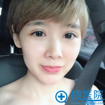 上海美莱曾翾双眼皮7天拆线效果图