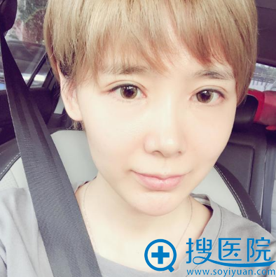 上海美莱原上海九院曾翾双眼皮案例术后一个月恢复图