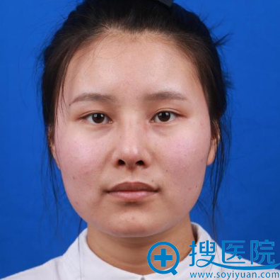 找上海美莱欧阳春做完鼻子半个月了