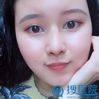 上海美莱欧阳春隆鼻案例术后两个月图片