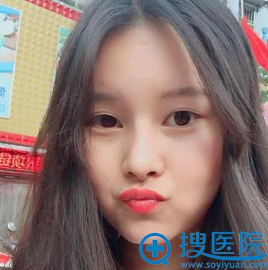 找上海美莱欧阳春做完鼻综合隆鼻一个月效果图