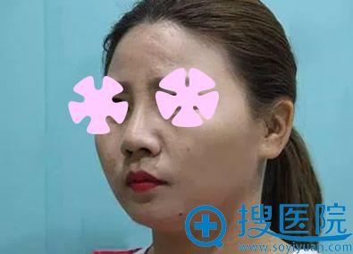 硅胶假体隆鼻第7天拆线