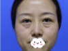 真人案例展示厦门海峡尹卫东外切法祛眼袋30天恢复效果图