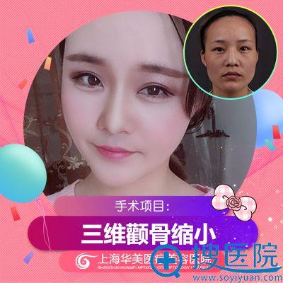 上海华美李志海做的颧骨下颌角磨骨案例