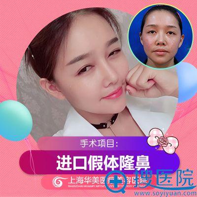 上海华美叶丽萍做的隆鼻案例
