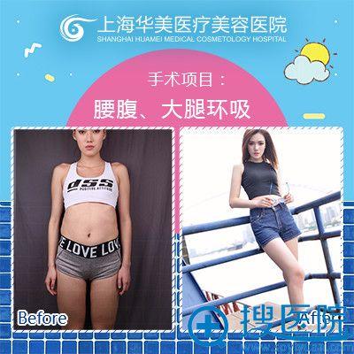 上海华美何斌腰腹和大腿吸脂案例