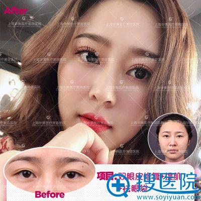 上海华美杨亚益做的双眼皮修复案例