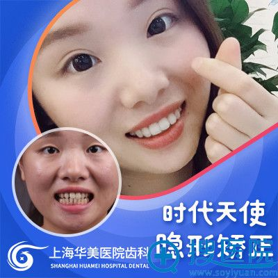 上海华美姚广楠主任时代天使隐形牙齿矫正案例