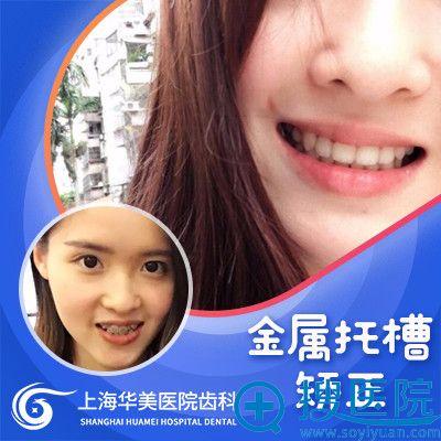 上海华美张晓峰金属托槽牙齿矫案例