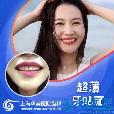 上海华美黄嵩主任牙贴面整牙案例