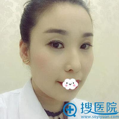 在台州博雅美惠注射瘦脸针术后7天效果