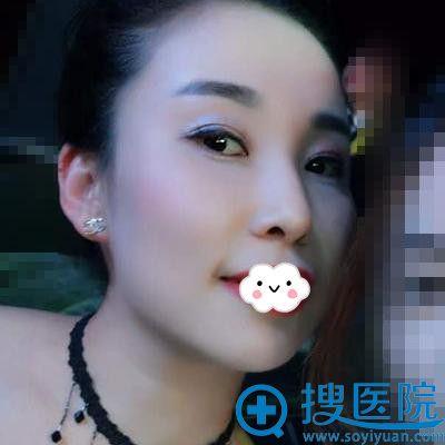 在台州博雅美惠注射瘦脸针术后15天案例效果照片