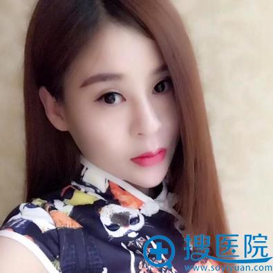 在杭州格莱美做面部线雕提升半个月