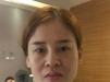 我在杭州格莱美整形医院花5万元找金凤茹做了面部线雕埋线提升